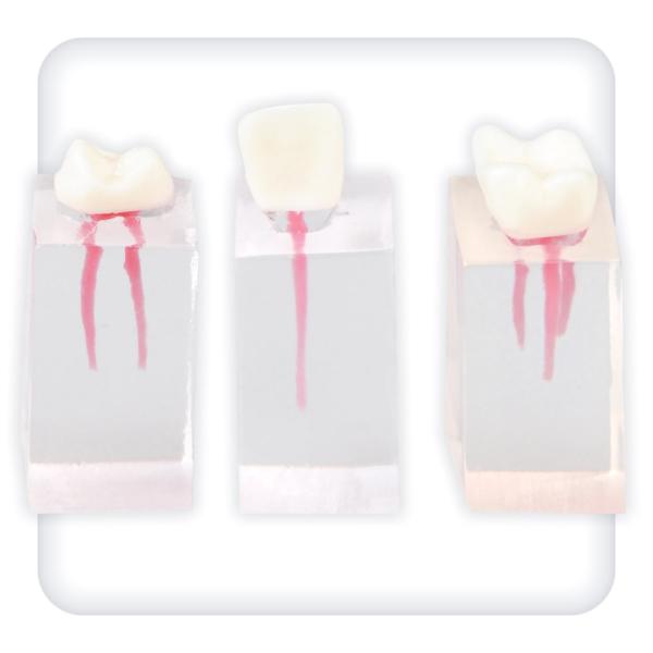 Набор из трех прозрачных блоков для эндодонтии