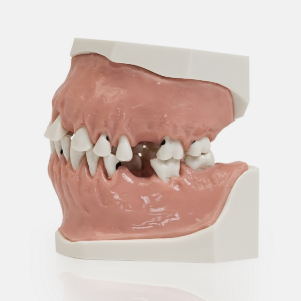 Модель верхней и нижней челюсти с патологией тканей пародонта на разных стадиях заболевания