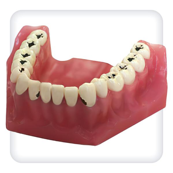Модель верхней и нижней челюстей с 32 модельными зубами для лечения кариеса