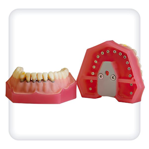 Модель верхней и нижней челюстей с 32 модельными зубами для лечения пародонтоза