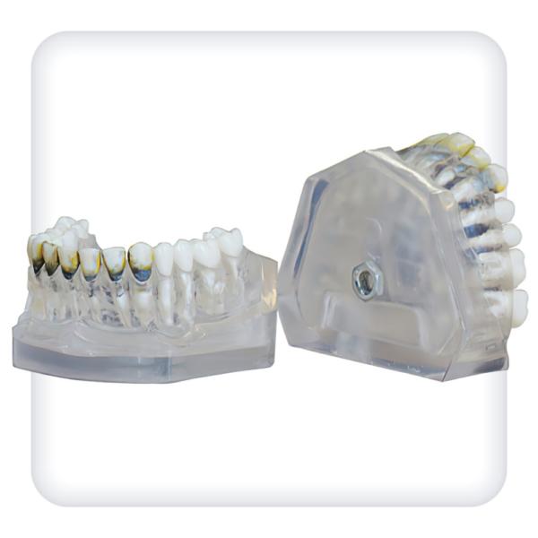 Модель верхней и нижней челюстей с 28 модельными зубами для лечения пародонтоза